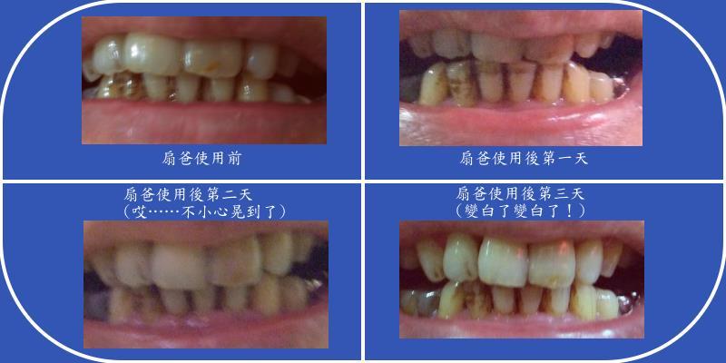 扇爸的牙齒改變.jpg