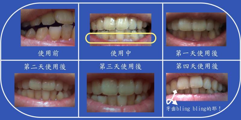 扇子的牙齒改變.jpg