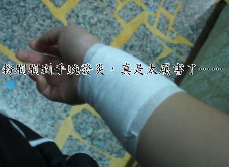 發炎的手.jpg