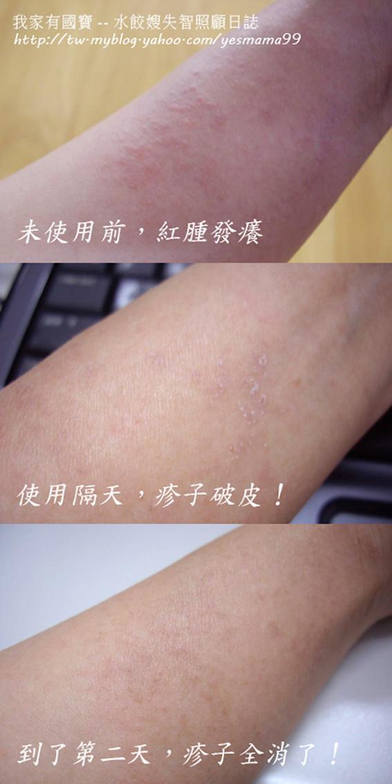 我手上的疹子的演化過程.jpg