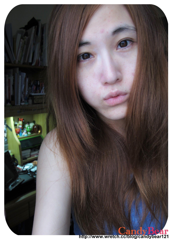 Dr.Hsieh-杏仁酸煥膚精華液20%&杏仁酸煥膚精華液10%_使用2週後皮膚比照圖