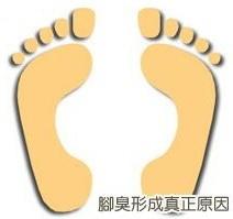 腳臭形成-需要除臭剋星襪子